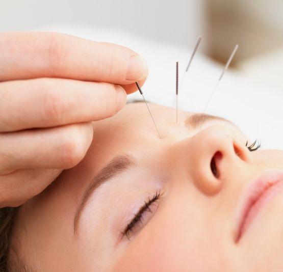 Acupuntura - La acupuntura es la terapia más antigua de la humanidad