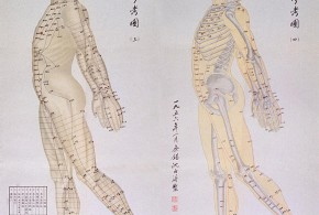 La acupuntura es la terapia mas antigua de la humanidad 290x195 - La acupuntura es la terapia más antigua de la humanidad