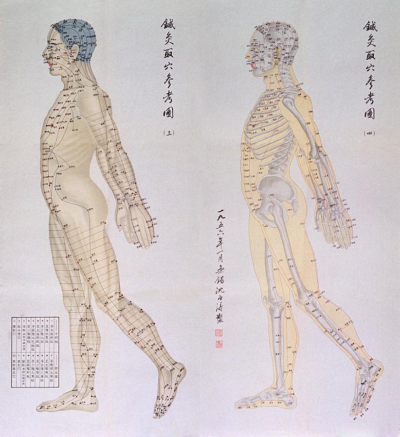 La acupuntura es la terapia más antigua de la humanidad